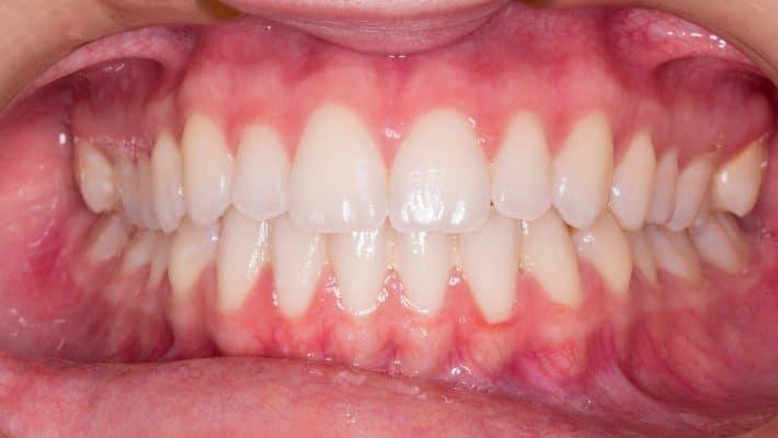 Pourquoi la mutuelle dentaire est-elle si importante ?