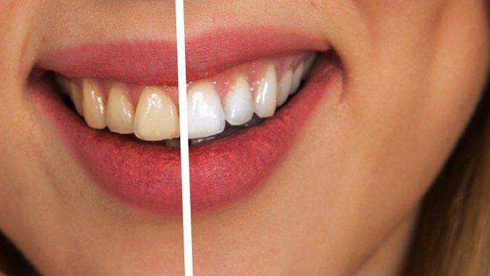 Combien de temps dure un blanchiment dentaire ?